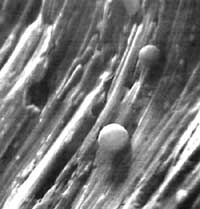 Microscopic image of spherical wear particles from a ball bearing.